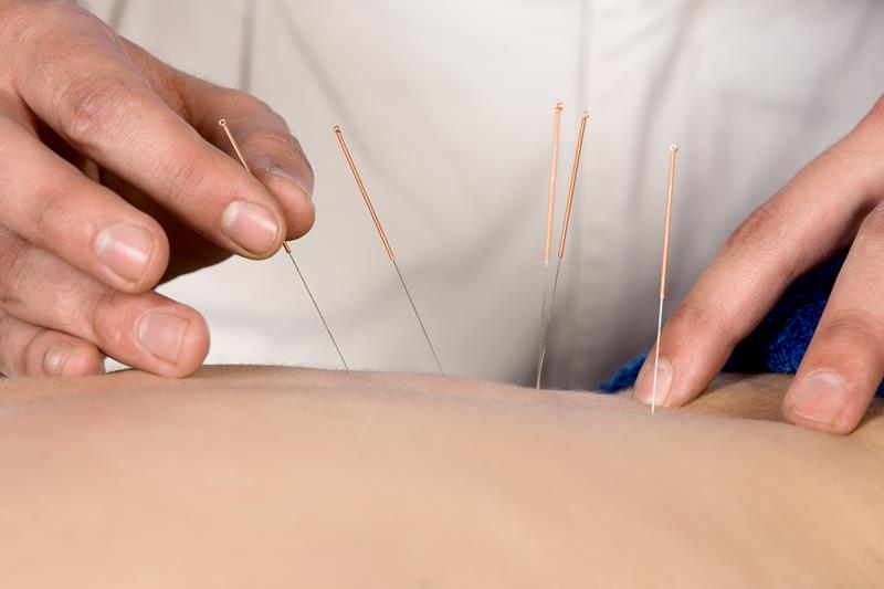 Acupuncture WY